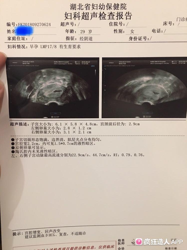 阴超子宫_排卵第17天阴超子宫内外均未发现孕囊